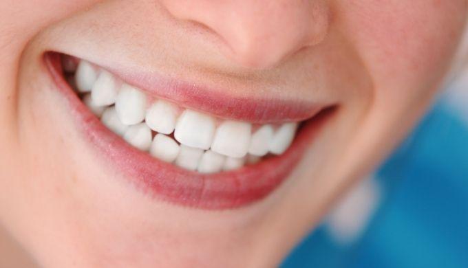 きれいな歯のイメージ画像