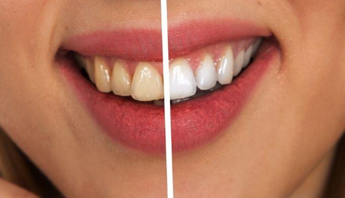 歯の黄ばみイメージ写真